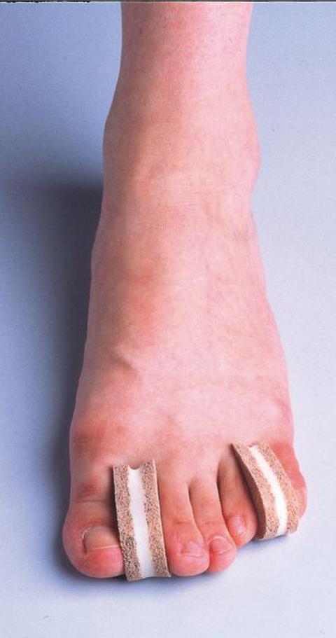 ソルボ足指間パッド